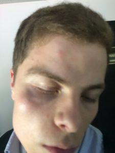 волонтера штаба Навального в полиции избили